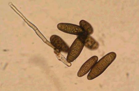 Конидии темно-бурой пятнистости ячменя – Drechslera sorokiniana (син. Bipolaris sorokiniana) фото